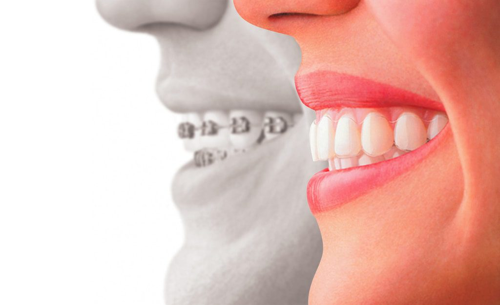 ortodoncia invisible - clínica dental en sevilla - centro bucodental