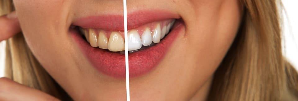 blanqueamiento dental centro bucodental sevilla